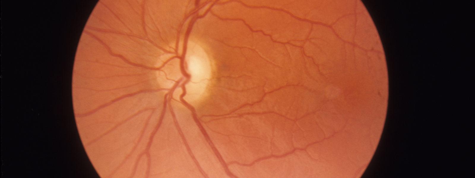 imagem técnica da retina de lhon