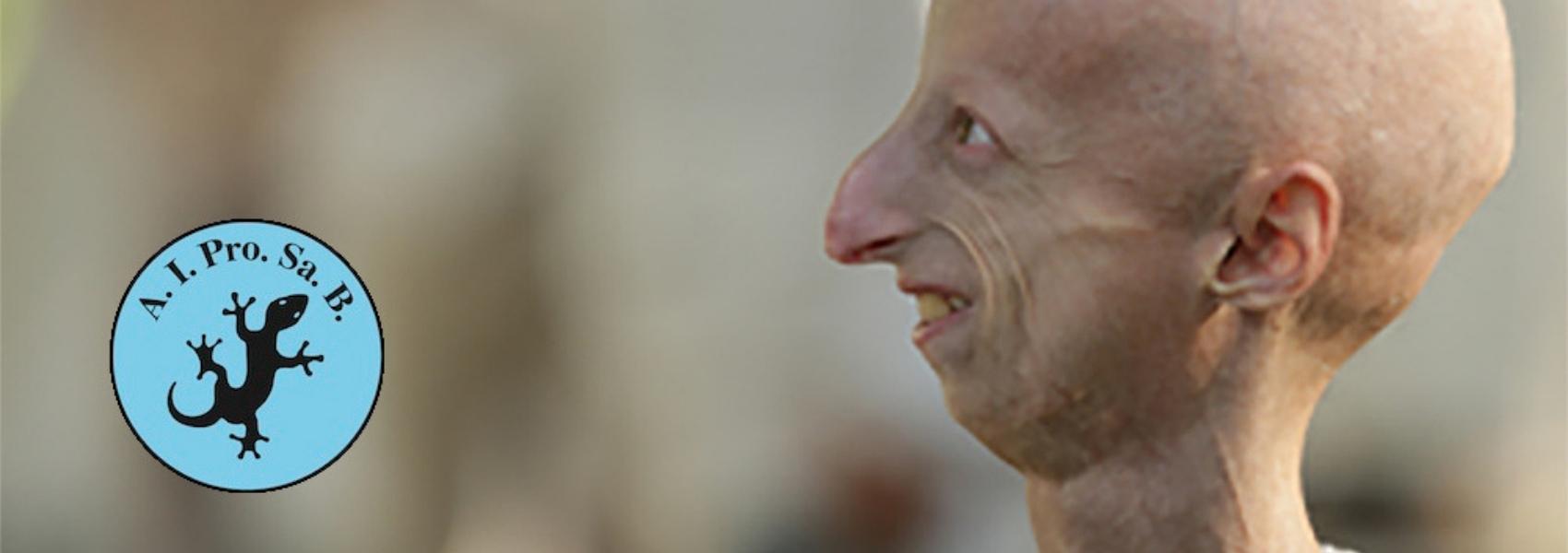 progeria, envelhecimento precoce
