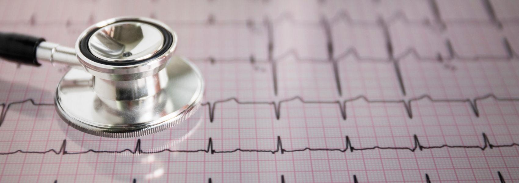 novo pacemaker