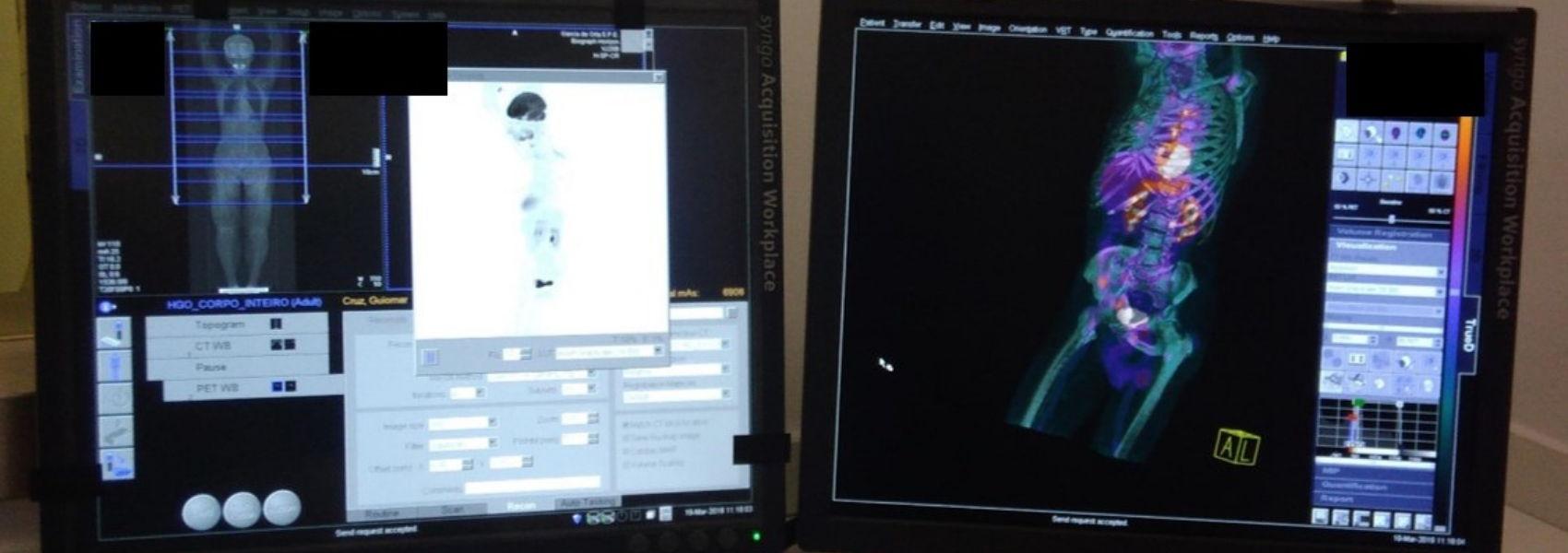 Hospital Garcia de Orta com novo exame