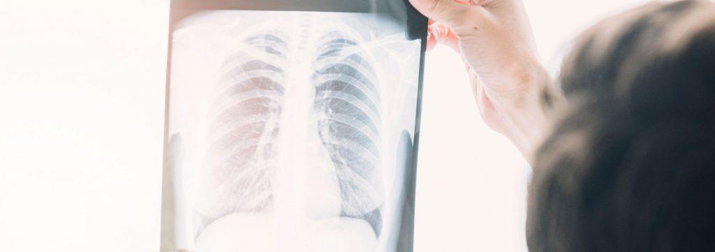 casos de tuberculose