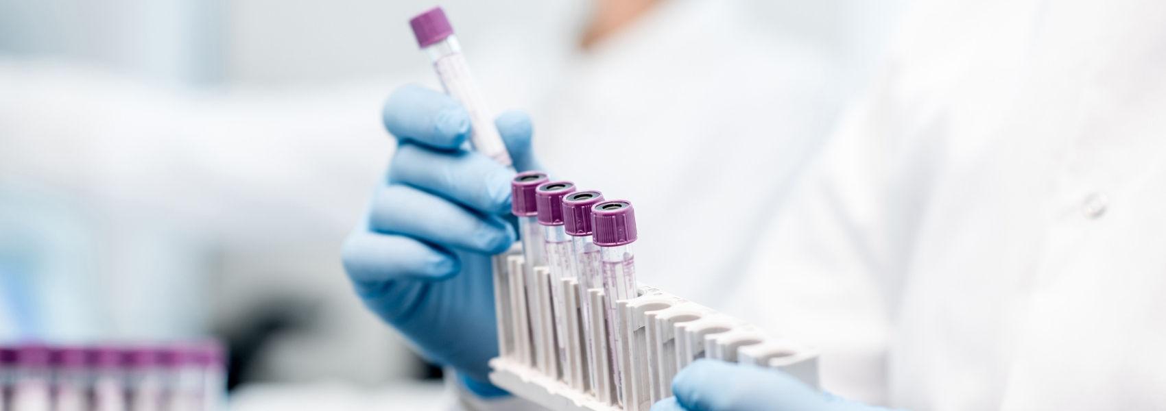 Equipa nacional descobre mecanismo de formação do vírus da gripe A