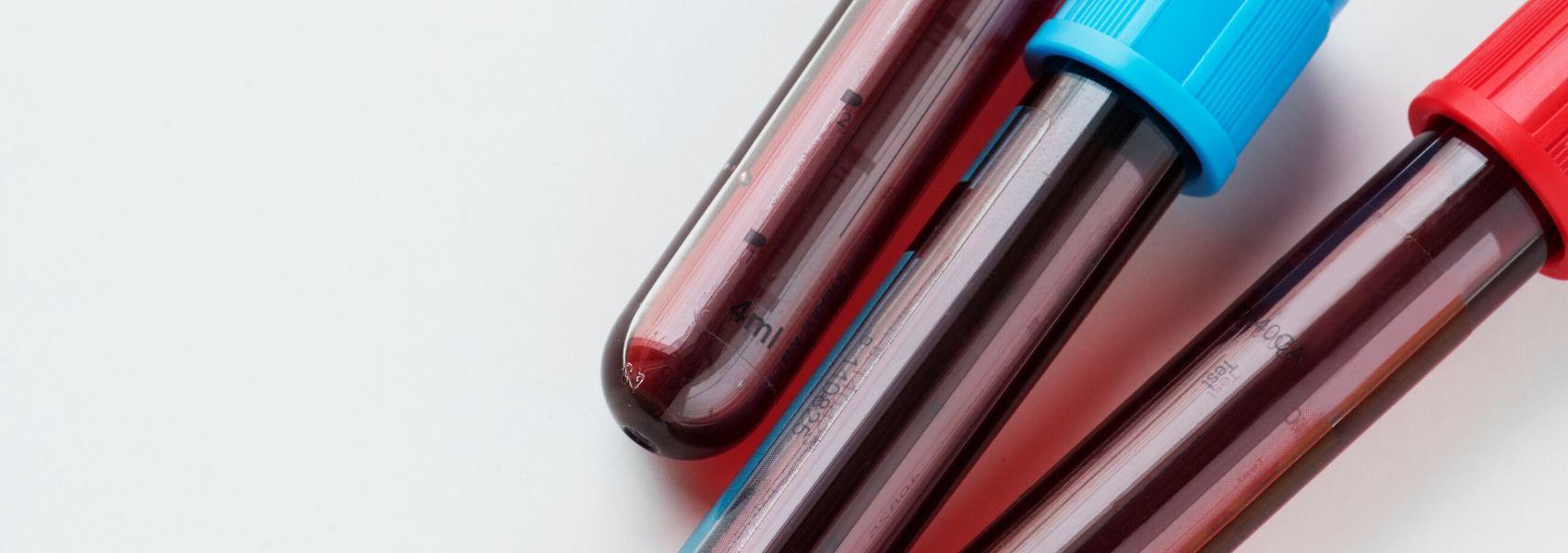 No mundo, 119 países não têm sangue suficiente para as necessidades médicas