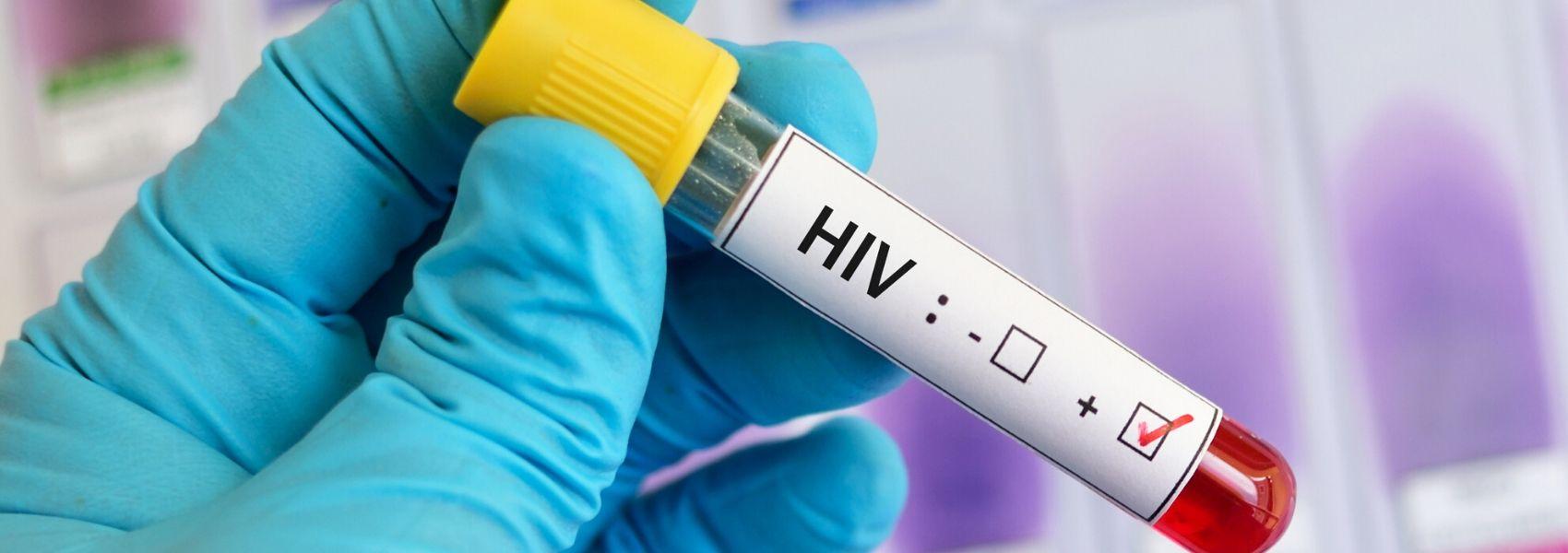 rastreios do VIH