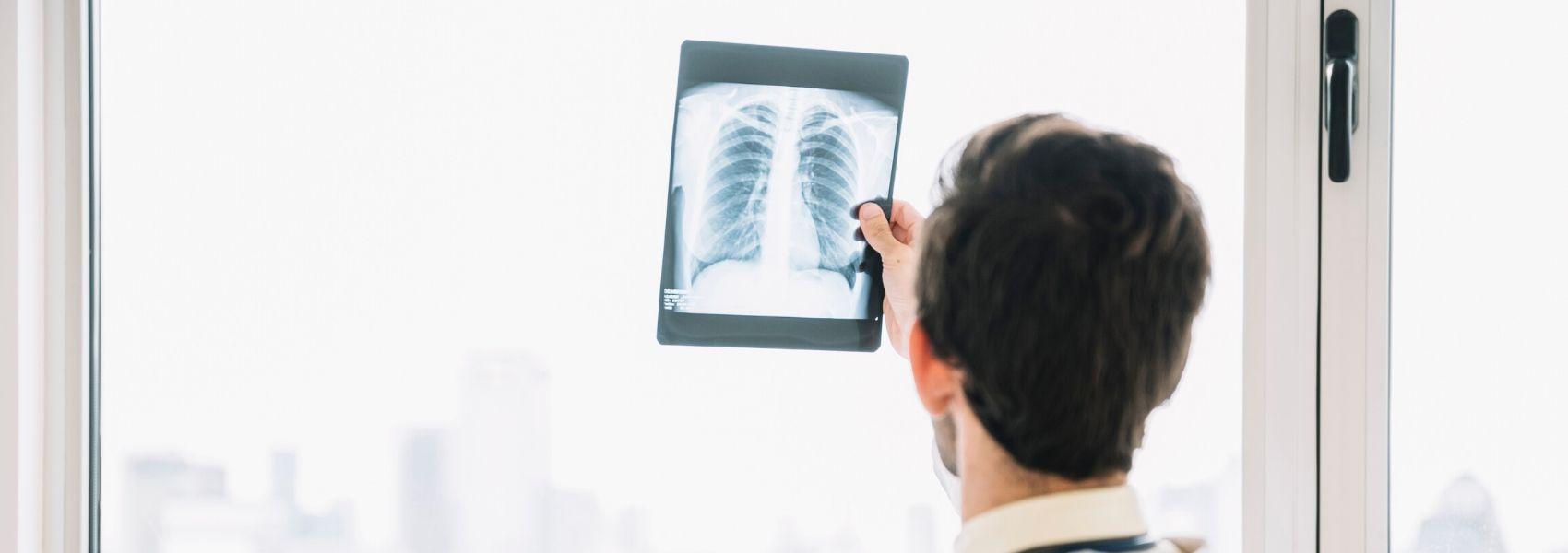 Utilizador de cigarro eletrónico diagnosticado com doença associada à exposição a metais pesados