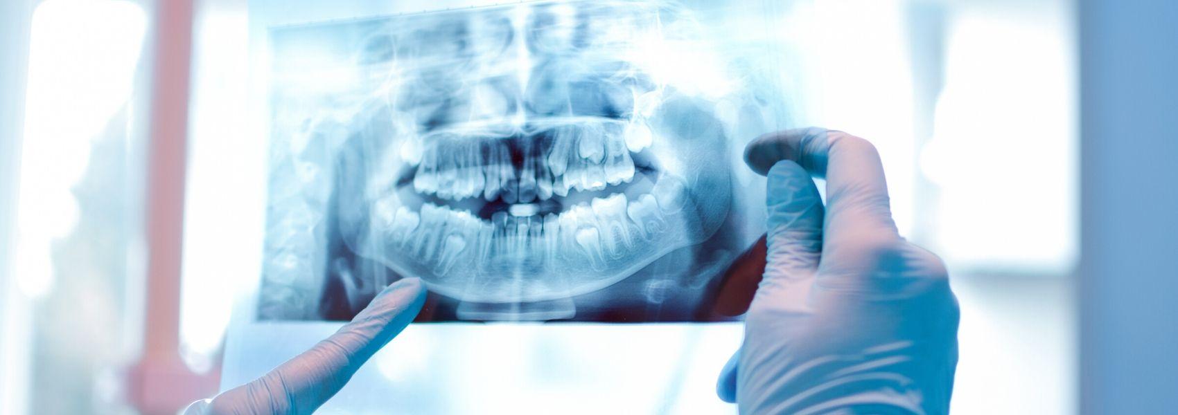 Cirurgia corrige maxilares desproporcionais e assimétricos
