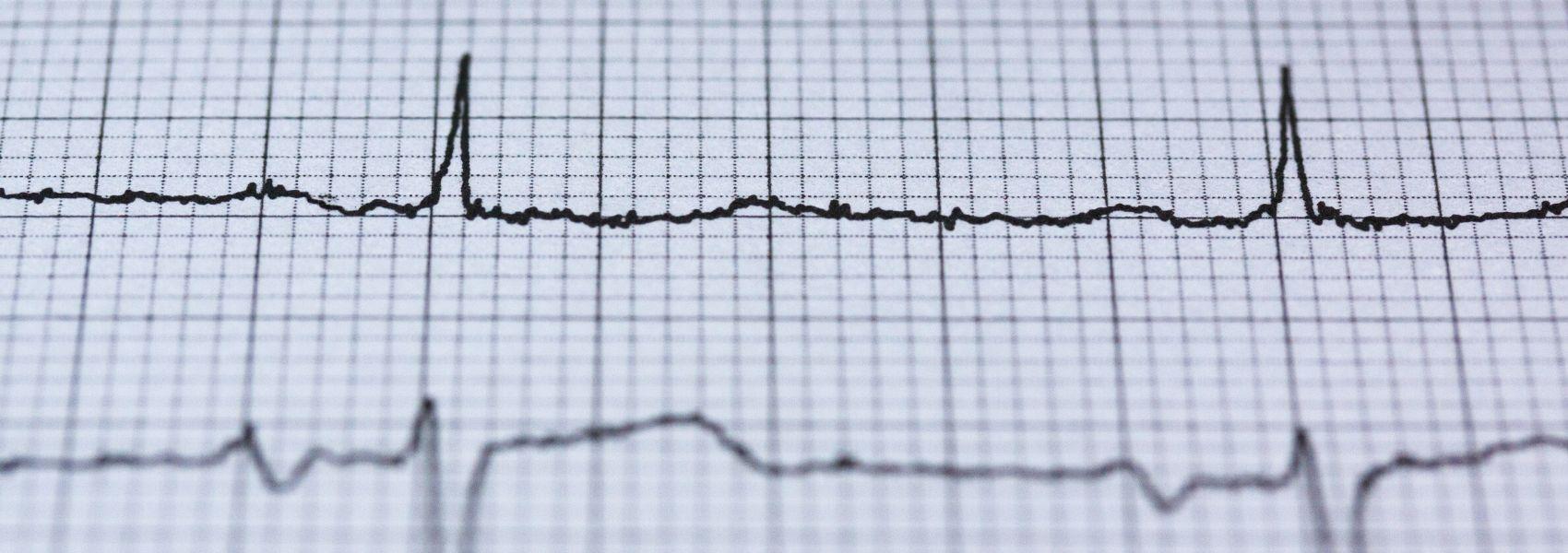 Mesmo depois de um AVC, doentes não mudam estilos de vida