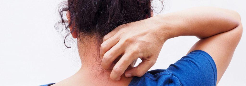 eczema ou dermatite atópica