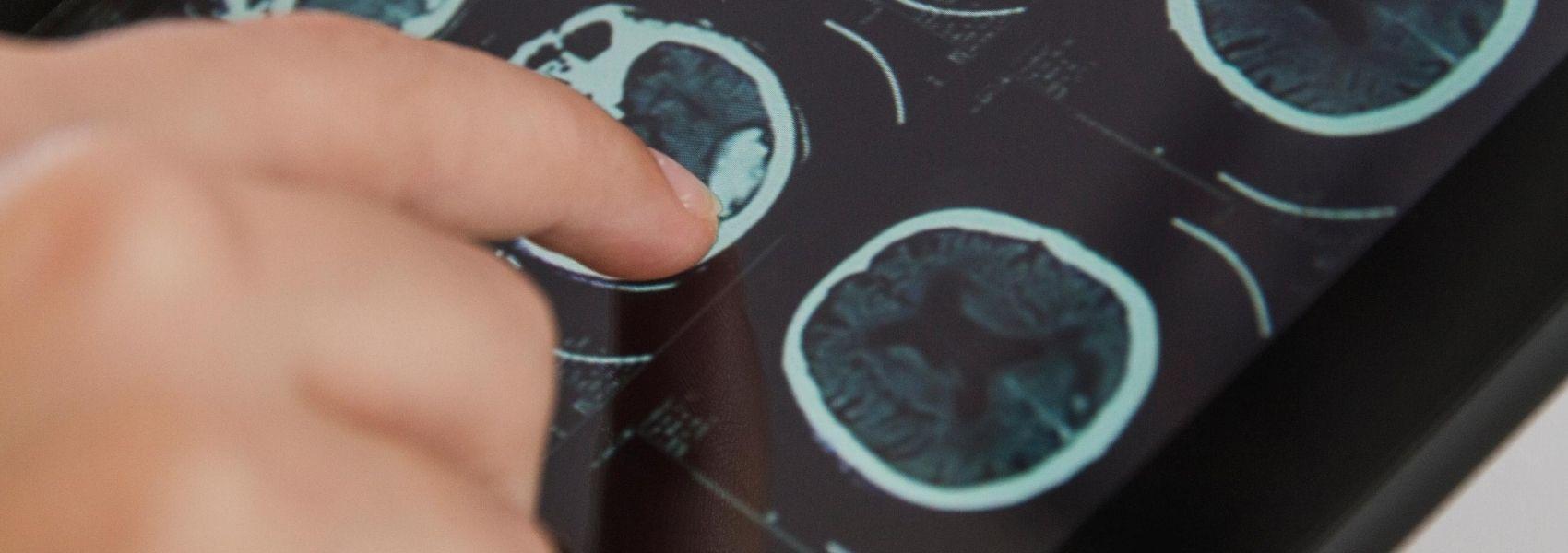 teste para Alzheimer