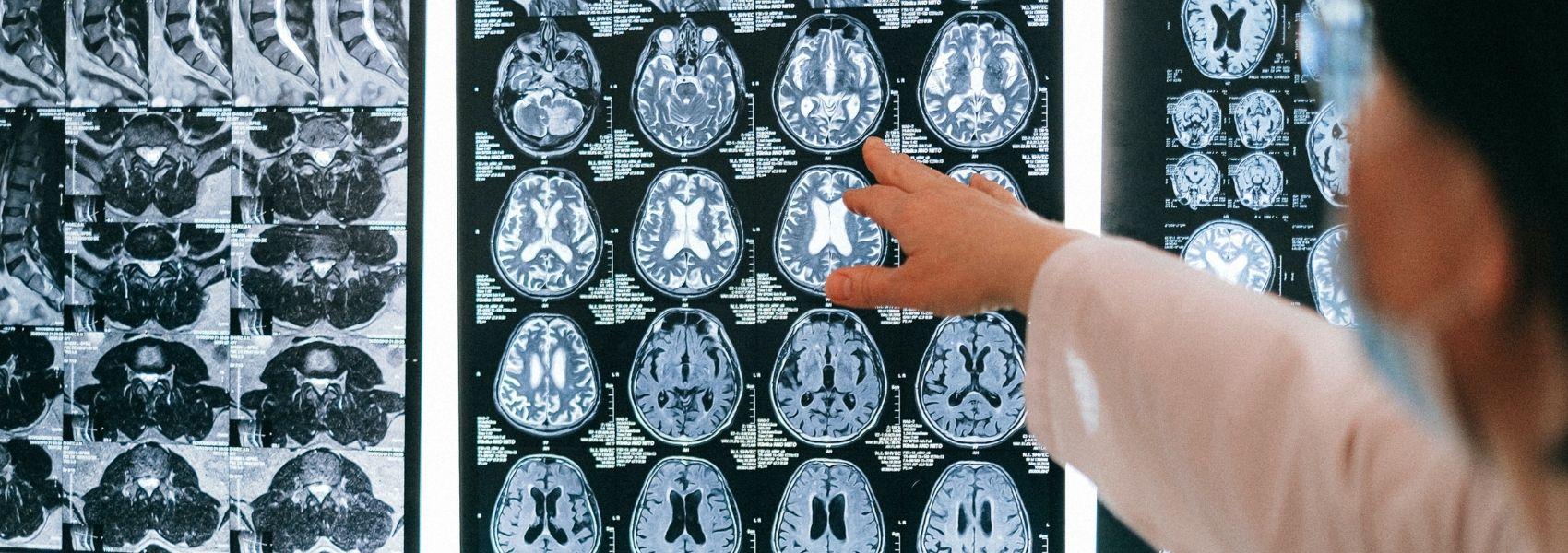 Técnica de imagem com 'mão' portuguesa ajuda a distinguir entre dois tipos de demência