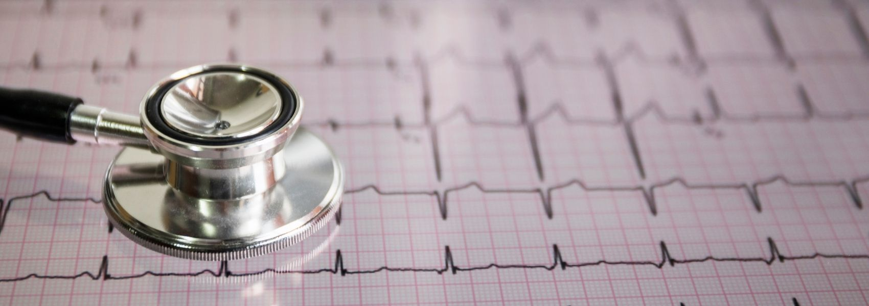 Está confirmado: a pressão arterial alta causa fibrilhação auricular