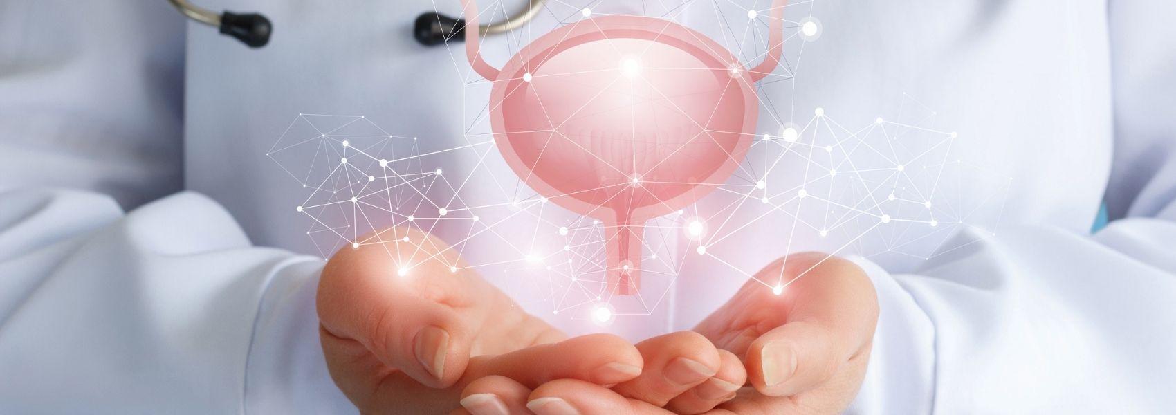 Cancro da bexiga: o que é e como identificar