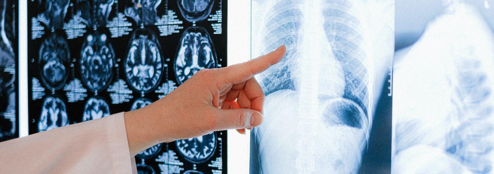 Sete em cada dez portugueses disponíveis para fazer rastreio ao cancro do pulmão