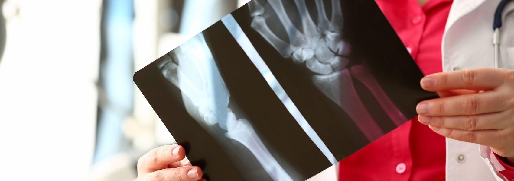 As recomendações europeias para melhorar cuidado de pessoas com artrite inflamatória