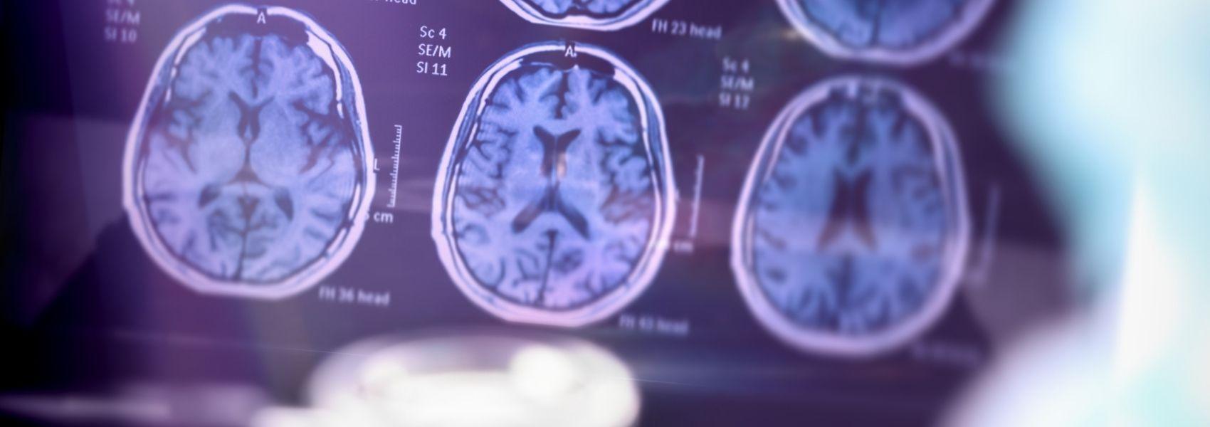 Casos globais de demência vão triplicar até 2050, apontam previsões