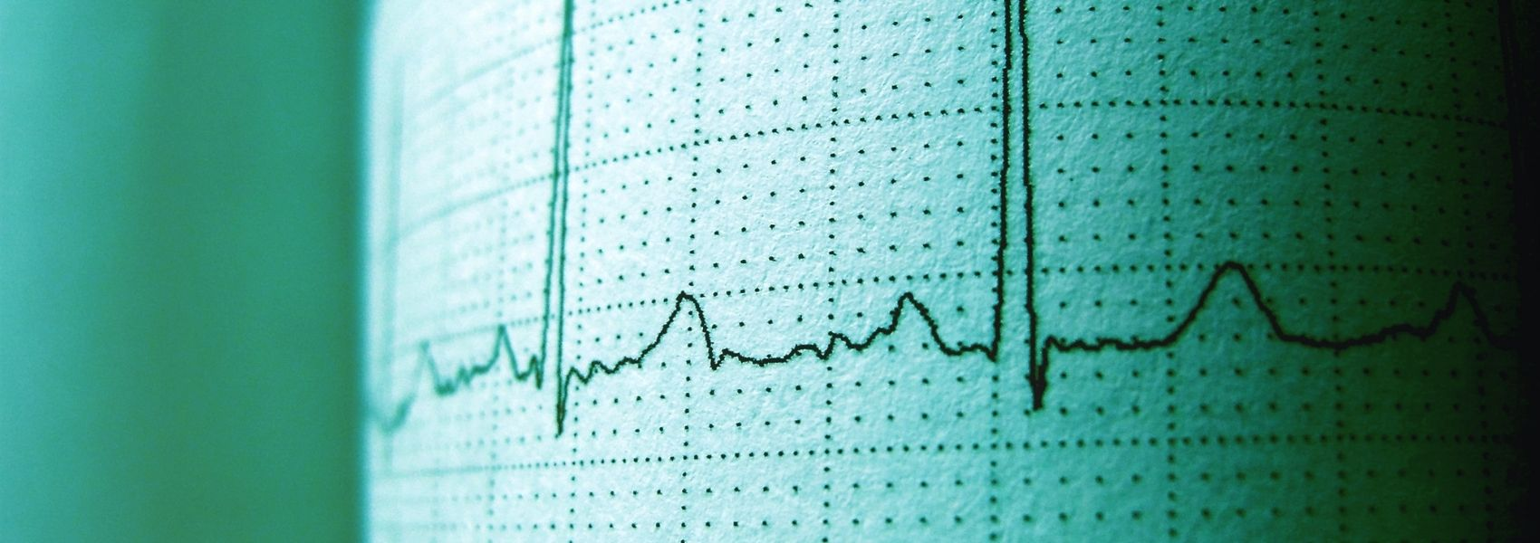 Negados tratamentos eficazes a idosos com insuficiência cardíaca